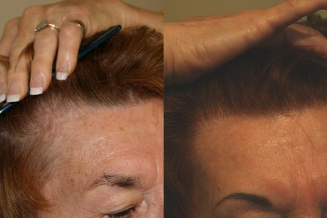 Hope_Hairlines.jpg