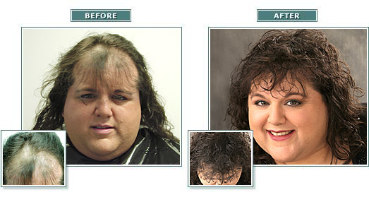 beforeafter_full_gina