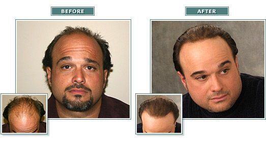 beforeafter_full_joec