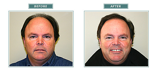 beforeafter_jeffsearle