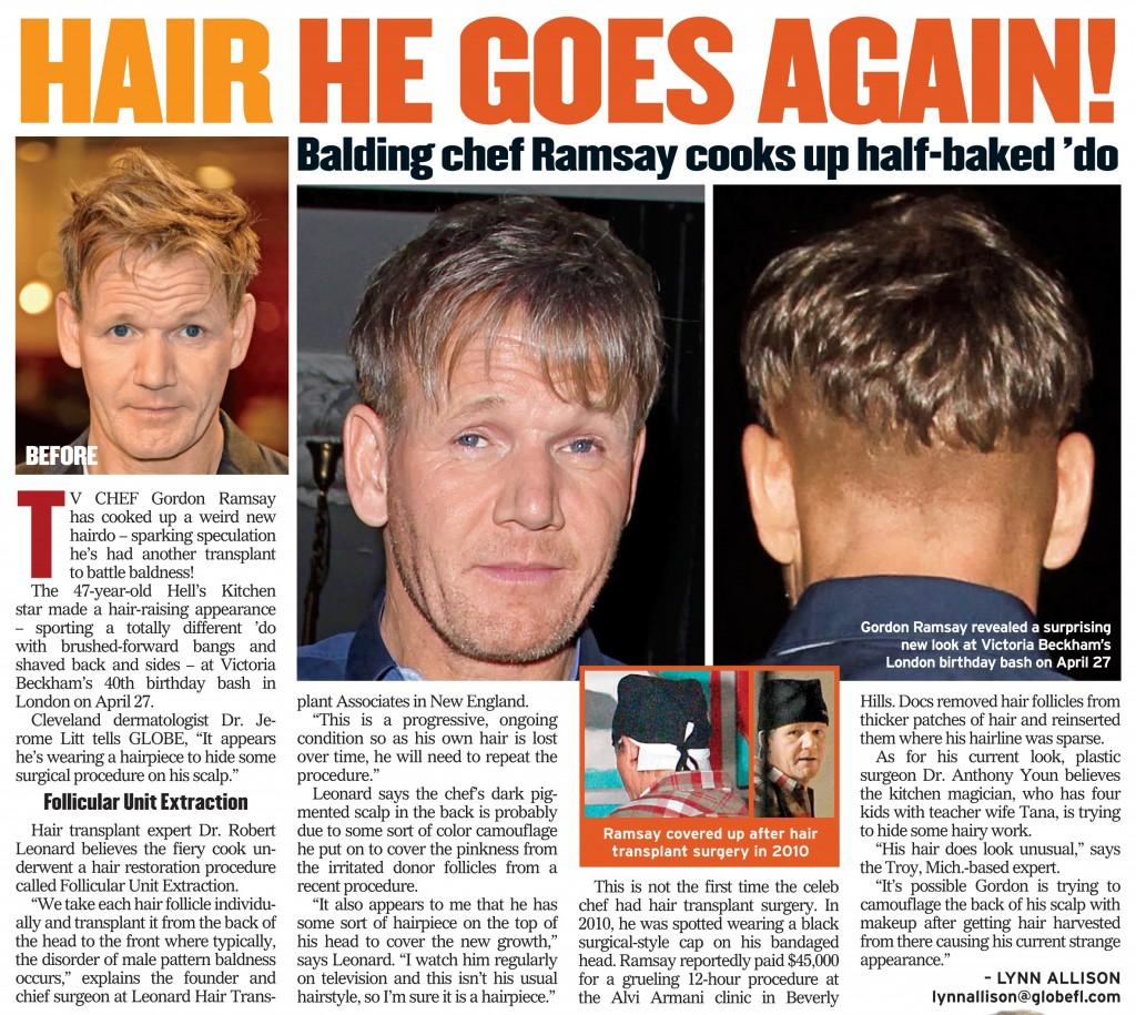 did tv chef gordon ramsay have a hair transplant
